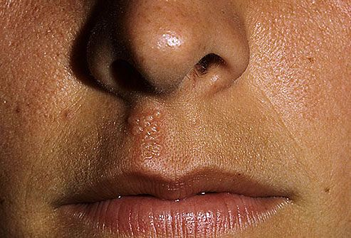 get rid of cold sores - WebMD