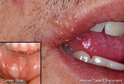 Herpes blisters on lip with canker sore inset