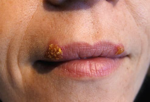 Is it true that having cold sores means you've got herpes in your mouth 3
