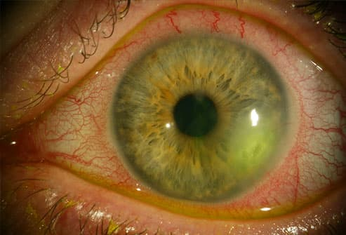 Herpes eye infection