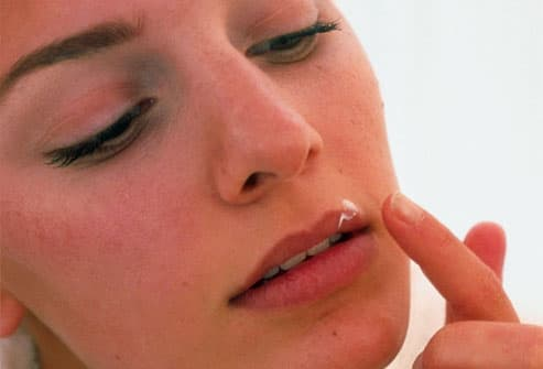 Young woman applying herpes medication