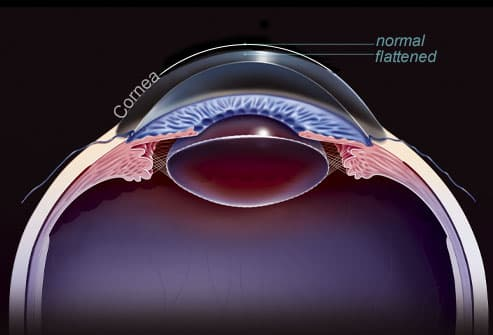 Eye Problem Pictures: Farsightedness, Nearsightedness ...