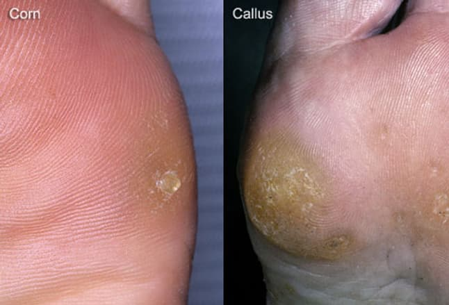 Side-by-side composite of corn and callus on foot