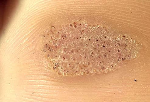 Photo close-up of plantar warts