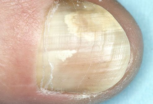 Photo of toenail with fungal infection