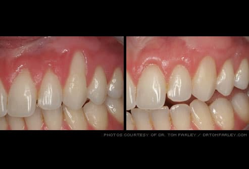 Gum recession can put you at risk of developing a cavity on the tooth root,