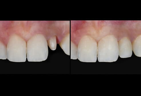 tooth with and without crown