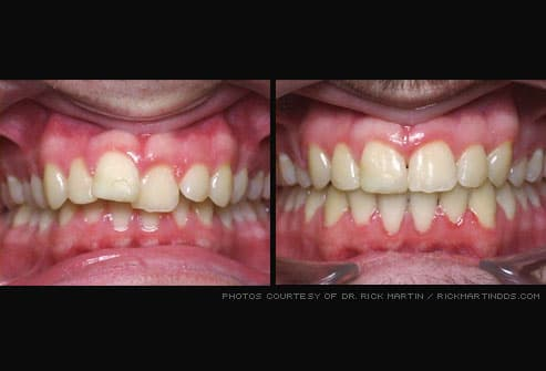 Misaligned teeth before and after braces
