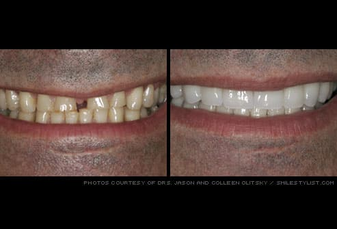 Man's smile before and after porcelain veneers