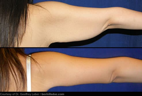 Cosmetic Surgery: Before and After Pictures of Liposuction, Tummy Tuck
