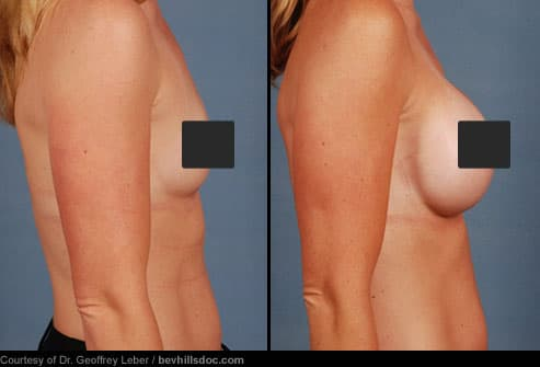 The breasts are enlarged with saline or silicone gel implants -- the patient ...