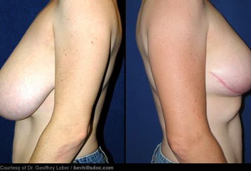 Breast Reduction: Before & After. While it's more common for women to seek