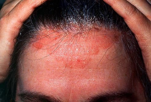 forehead with dermatitis
