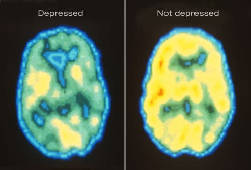 PET scan of depress and not depressed brain
