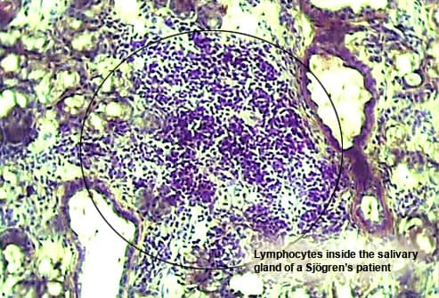 Lymphocytes in the salivary gland of a Sjogrens pa