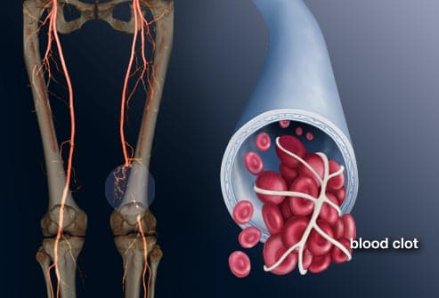illustration of dvt