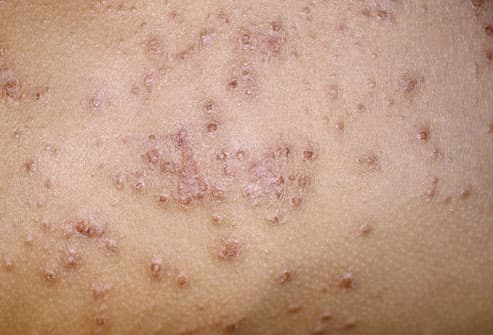 What is eczema? Eczema causes and treatment. Information