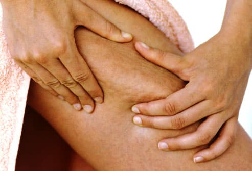 Pinching Cellulite on Thigh