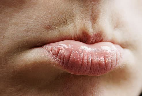 http www.webmd.com women guide do-i-have-a-yeast-infection