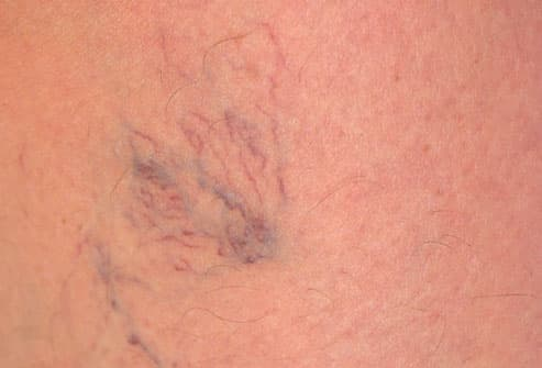 Vericose Veins on Womans Leg