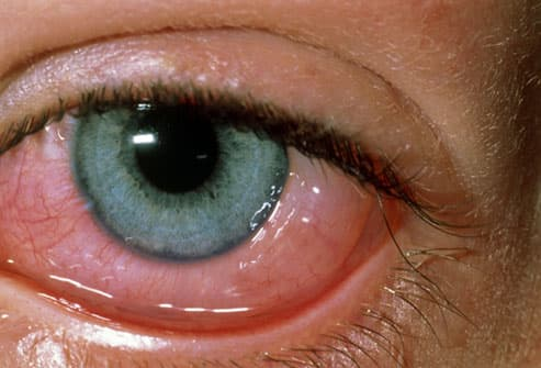eye allergies: symptoms, triggers, treatments with pictures, Skeleton