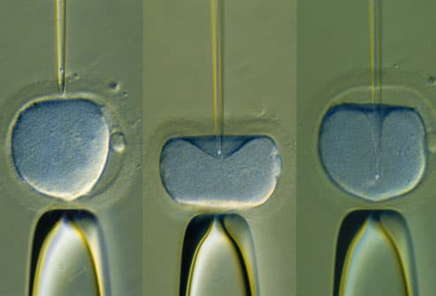 Injection of human sperm into egg