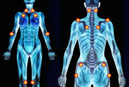 fibromyalgia pictures: where trigger points are, symptoms, pain, Skeleton