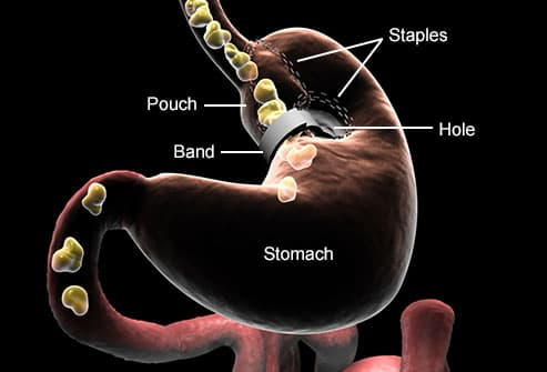 Vertical Gastric Banding Vgb Or Stomach Stapling