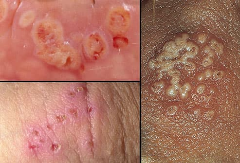 Pictures of Herpes Symptoms 1