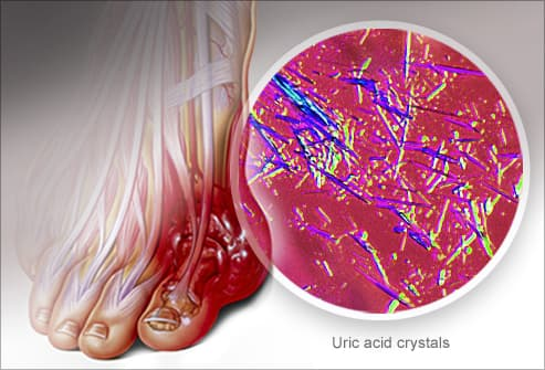 diets to reduce uric acid cholesterol gout disease treatment in ayurveda foods that help reduce uric acid