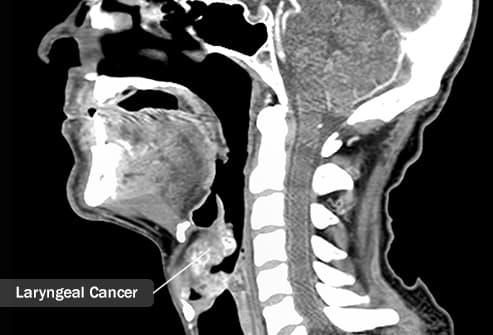 Pictures: Guide to Cancers of the Head and Neck
