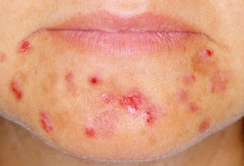 Acne excoriated on female