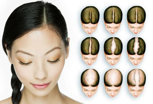 ... the center of the scalp a receding hairline is very rare in women