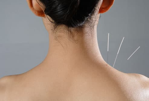 A woman receiving acupuncture for headache