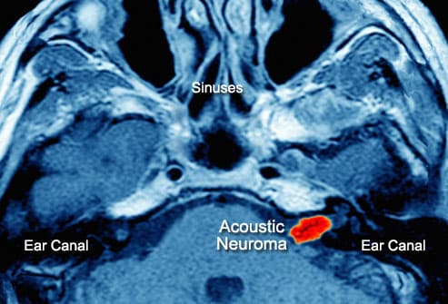 Brain scan showing Acoustic Neuroma in ear canal