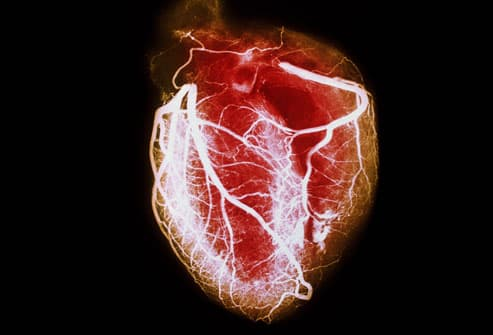 heart disease pictures: clogged arteries, ekg tests, holter heart, Skeleton