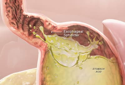 3D medical illustration of acid reflux
