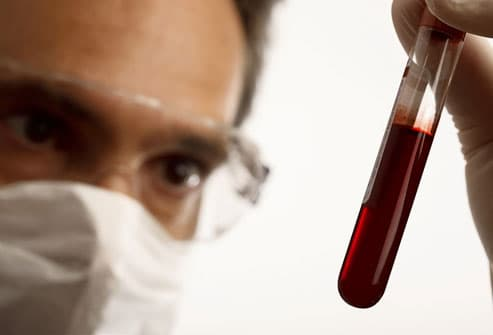 Doctor Analyzing Blood Sample