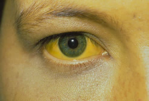 Yellow Eye of Jaundice Victim