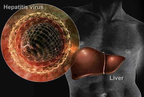 Composite of Hepatitis Virus and Liver