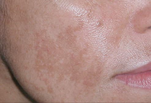 Melasma (pregnancy mask) on cheek