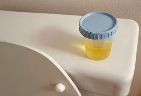 Container of urine sitting on toilet