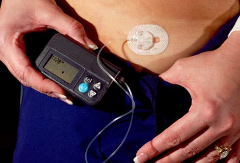 Slideshow: Blood Sugar Control and Insulin