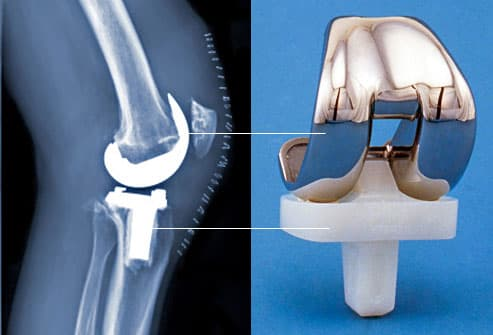 prothesis replacement knee