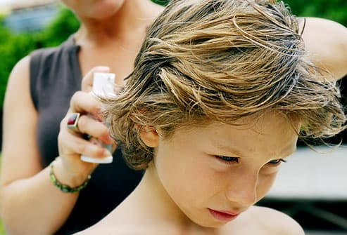 pictures: how do you treat and prevent head lice?, Skeleton