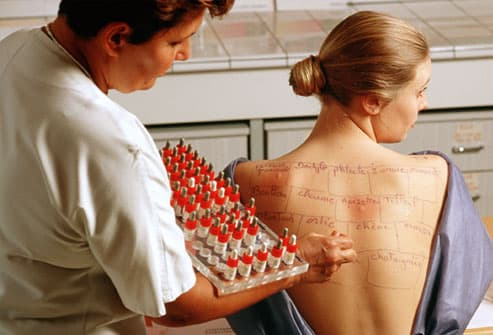Woman Undergoing  Allergy Test