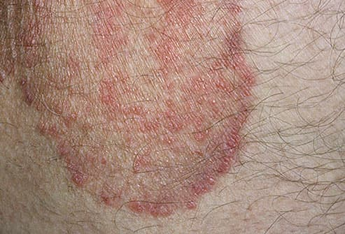 Can diabetes cause genital warts itch