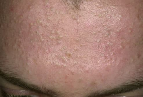 How to cure small pimples on forehead?