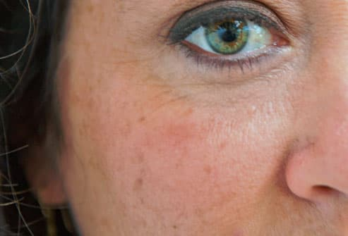 Woman With Age Spots