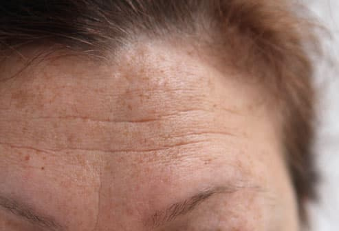 Woman With Forehead Wrinkles
